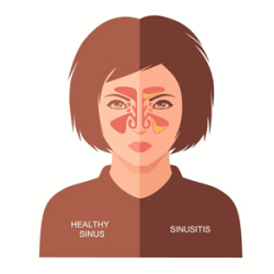 Chronic_sinusitis